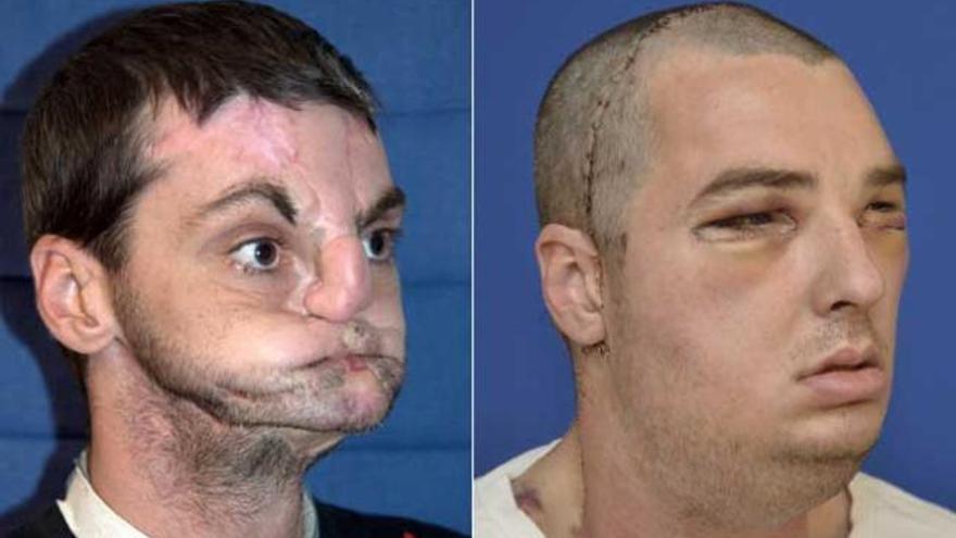 """Realizan el trasplante de cara """"más completo"""""""