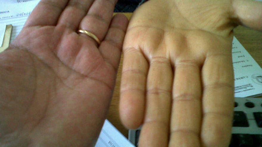 El 80% de los murcianos con Hepatitis C no está diagnosticado