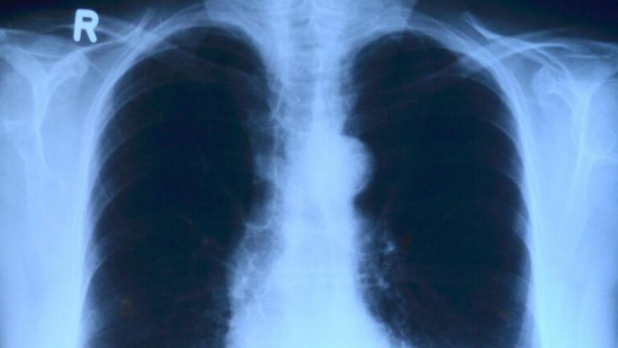 Para los que tengan enfermedades respiratorias: ¿Qué hacer con la vacuna Covid?