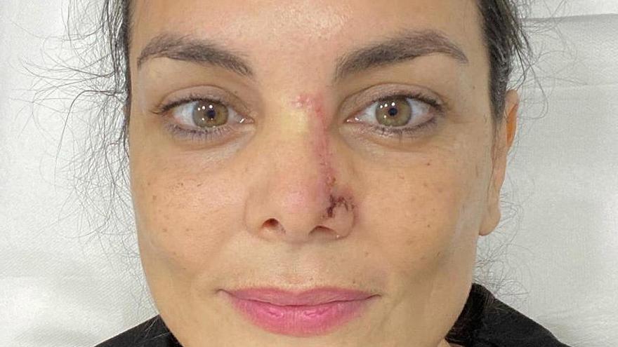 Mónica Carrillo desvela que ha padecido un cáncer de piel