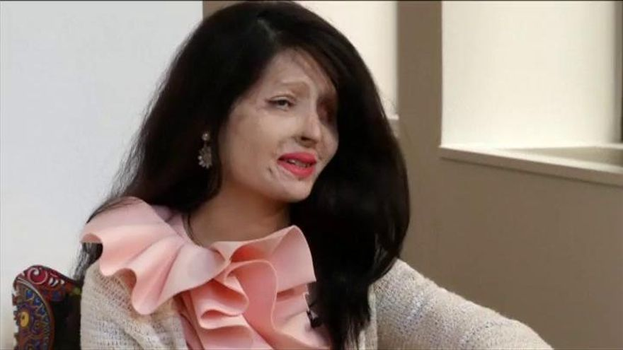 Reshma, la mujer desfigurada que redefine el mundo de la moda
