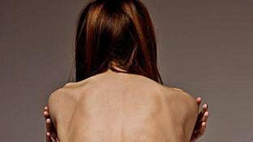Sanidad refuerza la red de atención a los trastornos de la conducta alimentaria