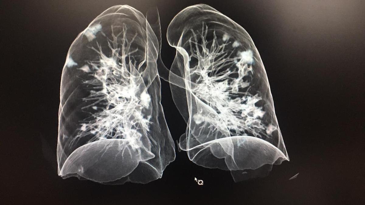 Imagen en 3D de uno de los pulmones con neumonía por coronavirus