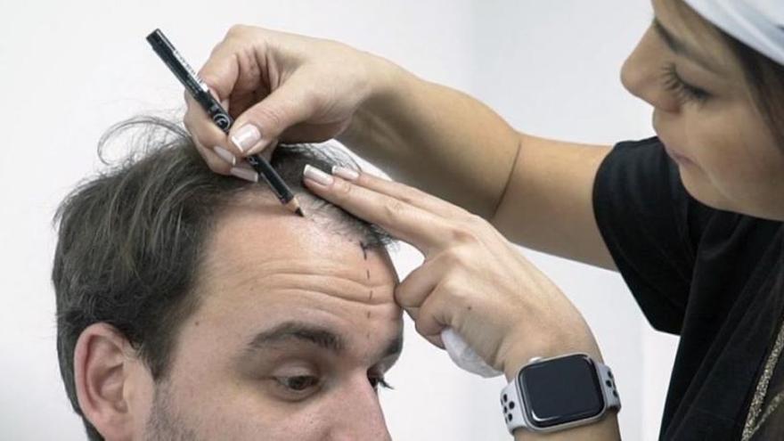 MCAN: implante de pelo en Turquía para recuperar el cabello