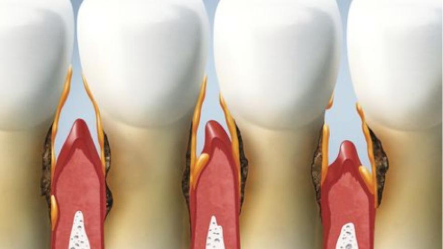 ¿Cuál es la relación entre la enfermedad periodontal y el covid-19?
