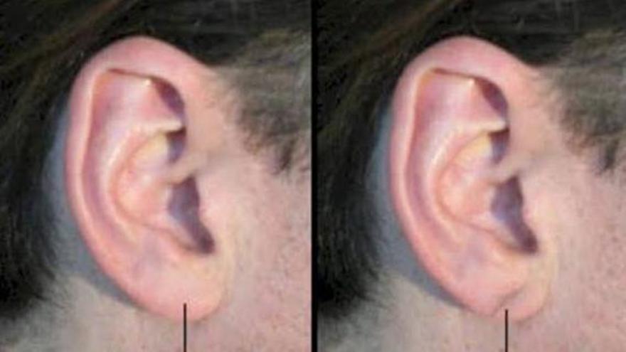 La advertencia de un cardiólogo: Ten cuidado si observas que tienes esta marca en la oreja