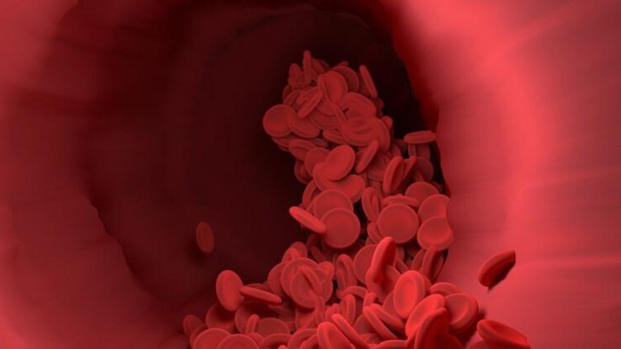 «Síndrome de la sangre pegajosa»: Causas, síntomas, tratamiento