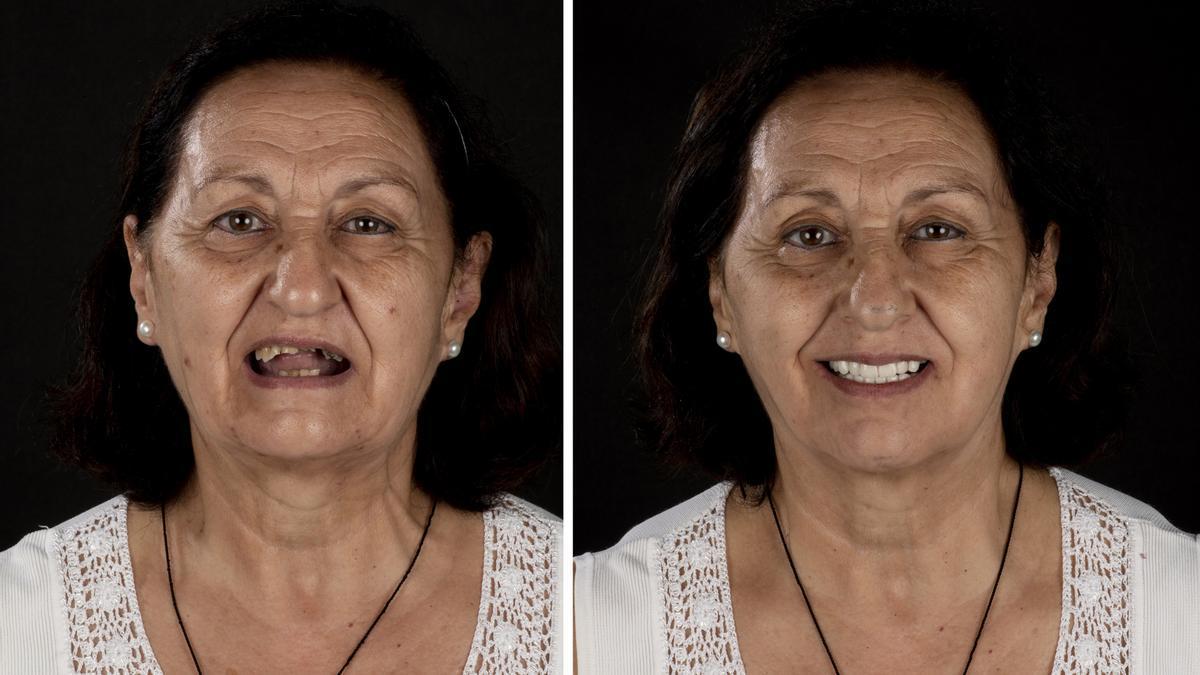 Antes y después del tratamiento de implantes inmediatos en Vericat.