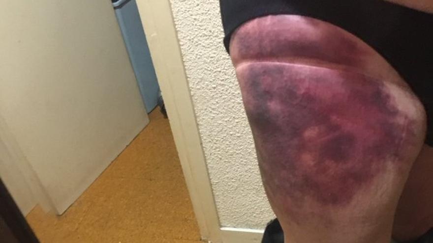 L'actor gironí Pep Cruz, atropellat per un patinet elèctric
