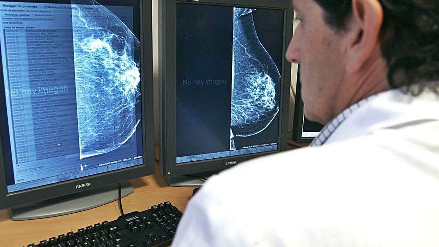 Los pacientes de cáncer tardan más en acudir al médico