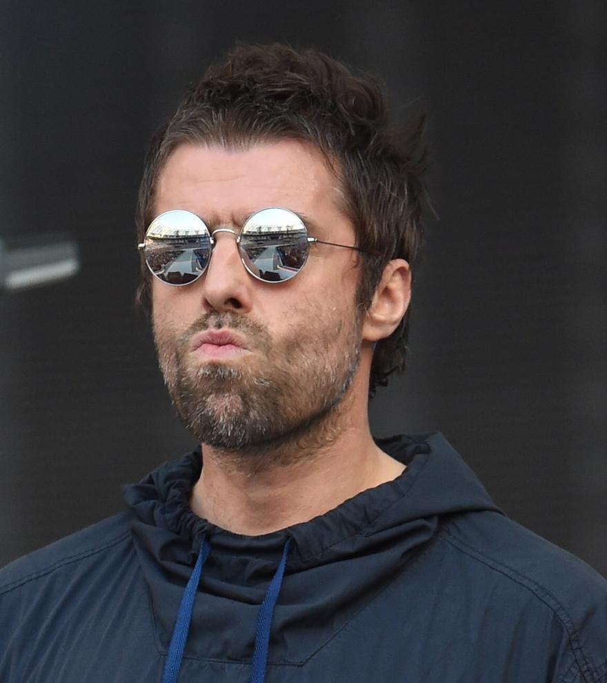 """Liam Gallagher sube una foto herido y siembra confusión en las redes: """"Me caí de un helicóptero"""""""