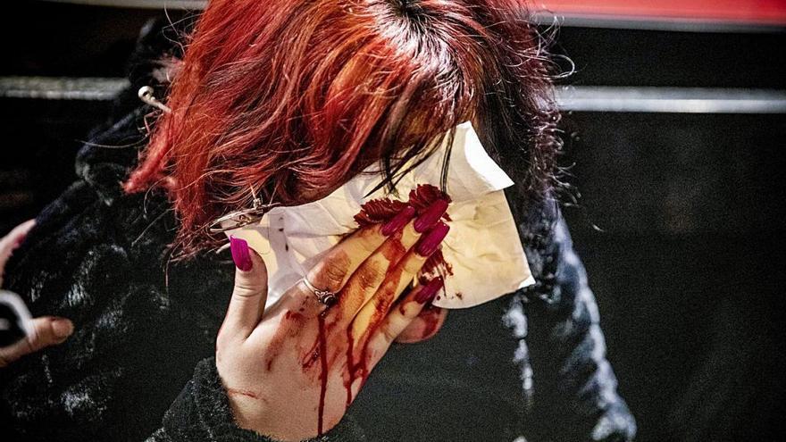 Imputats dos mossos per la pèrdua de l'ull d'una jove per un projectil de 'foam'