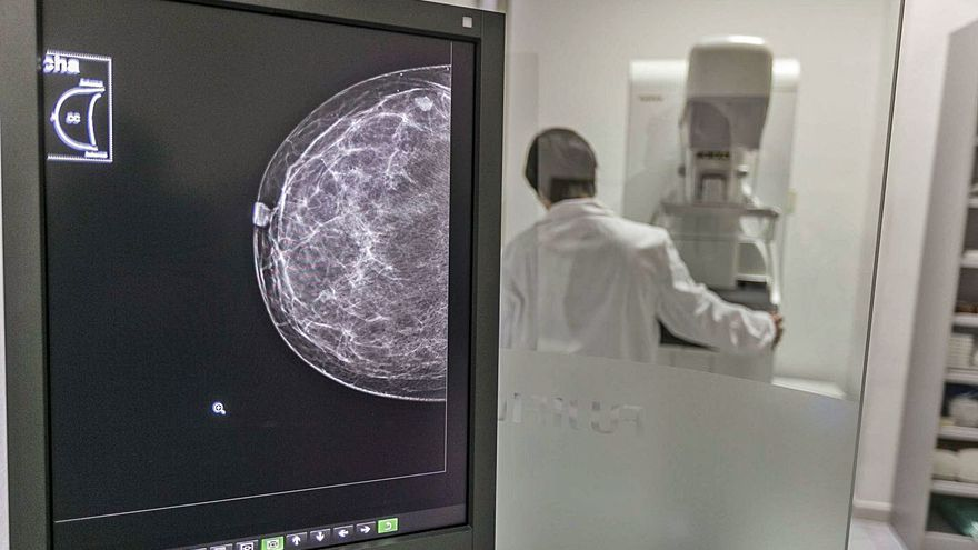El Hospital General de Elche prestará su mamógrafo por las tardes por la avería del de Altabix