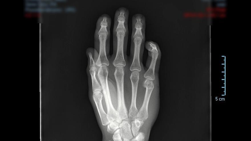 La patología del Miembro Superior es causa frecuente de consulta médica e incapacitación laboral