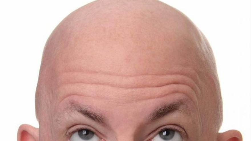 La alopecia, una pista de la gravedad de la Covid-19