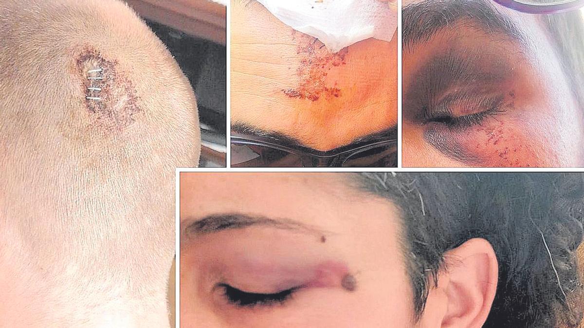 Imágenes de las lesiones sufridas por las víctimas tras la brutal paliza en el parque Geólogo Royo de Castelló.