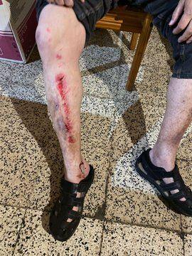 Herido tras caer en una rejilla de alcantarilla en Casablanca I.