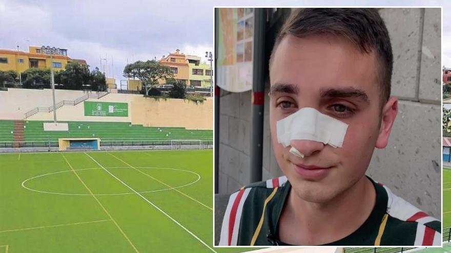 """El árbitro agredido en el López Socas: """"Fui a expulsarlo, me empujó, me dio un cabezazo y no recuerdo mucho más"""""""