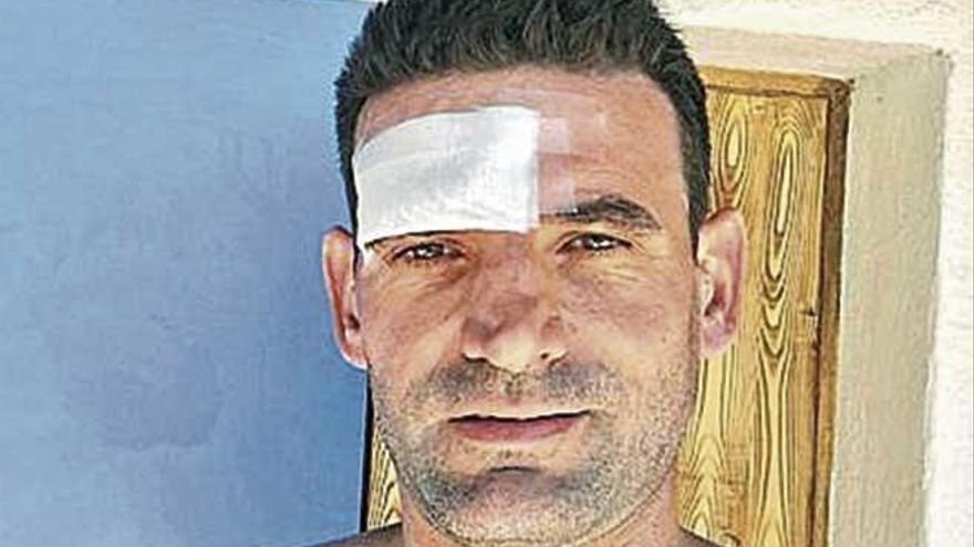Denuncia a un parque acuático de Mallorca por un accidente en un tobogán