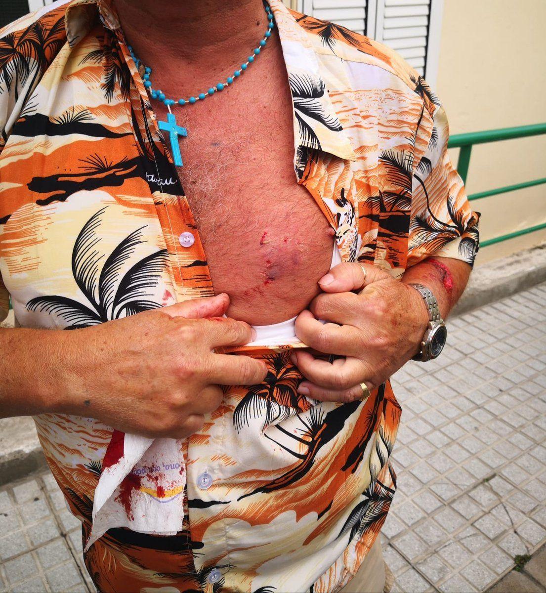 Un perro ataca a un hombre en Las Palmas de Gran Canaria