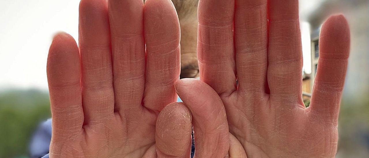 Alicia, mujer maltratada en los setenta, se tapa la cara con las manos. | C. M. B.