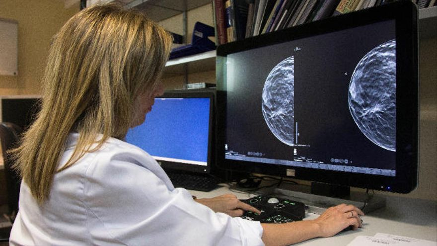 El un 95% de los tumores no son hereditarios