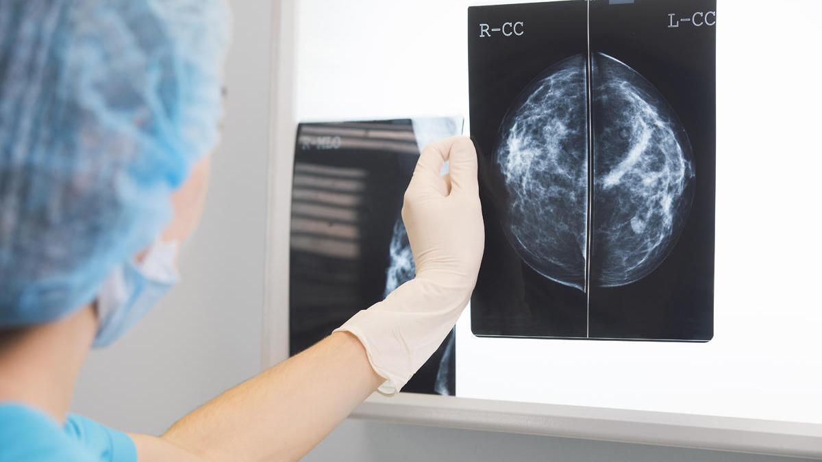 En España, una de cada ocho mujeres desarrollará cáncer de mama invasivo.