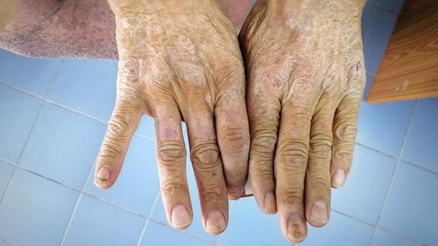 Esclerodèrmia: Causes i efectes d'una malaltia immune