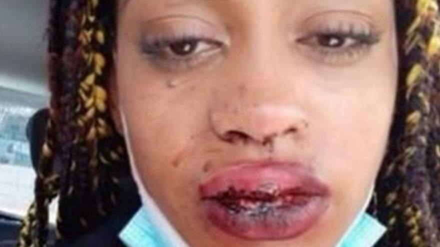 """Una joven denuncia una agresión en Arrecife: """"Me pegó un puñetazo en la cara"""""""