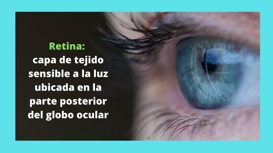 Síntomas del desprendimiento de retina