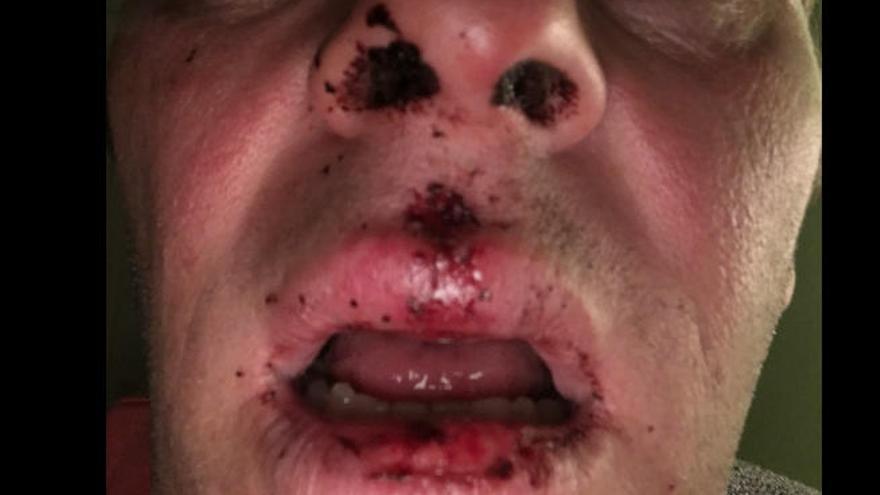 Verprügelter Moderator Baumgarten fordert Zivilcourage
