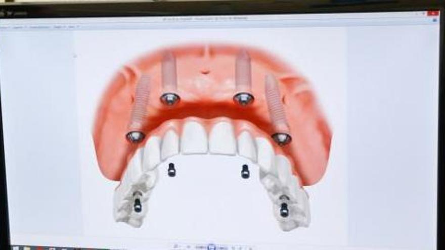 Condenado un protésico dental que arrancó un puente a una paciente con una palanca y una sierra eléctrica