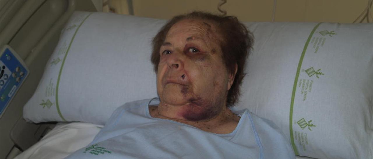 Ana María se recupera en el hospital de la brutal agresión.