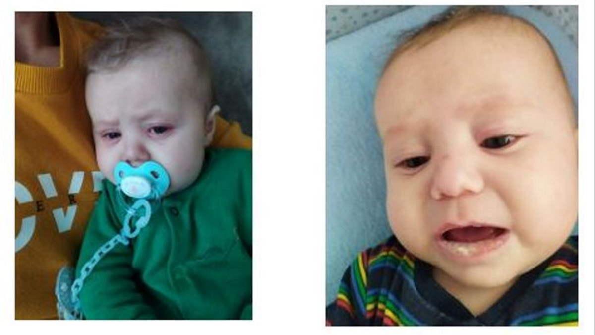 Hugo, el bebé con la enfermedad de Kawasaki