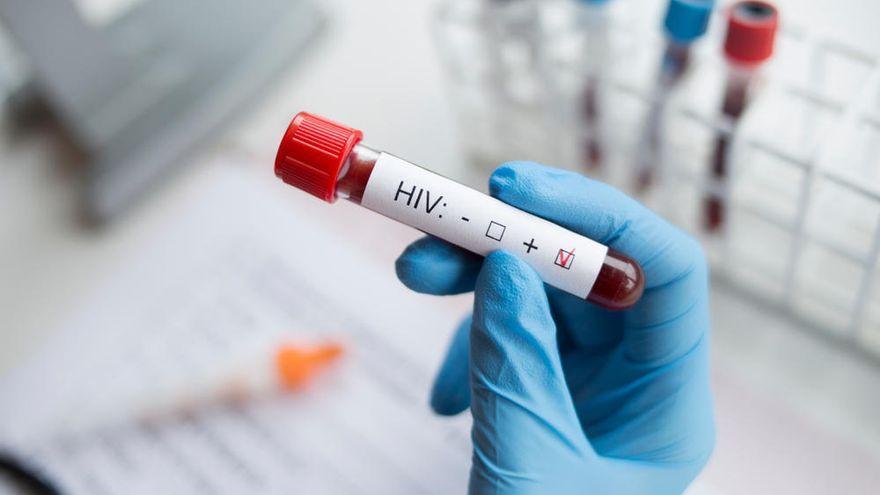 Sanidad detecta entre 250 y 300 casos de VIH al año en Canarias