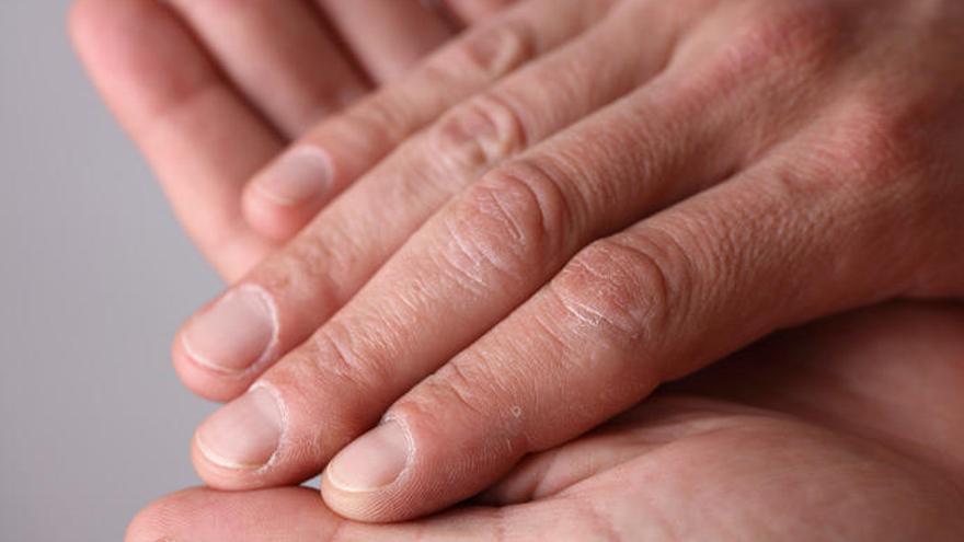 Crujirse los nudillos de la mano: ¿es bueno o es malo?