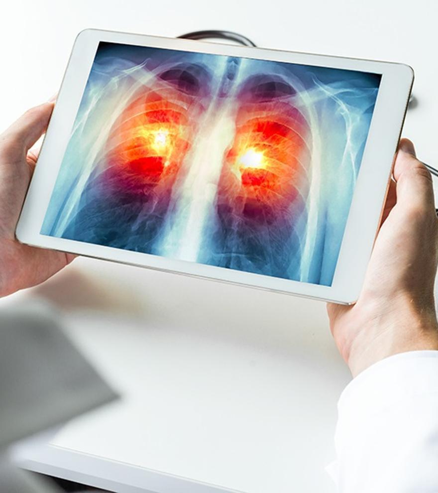 La muerte por cáncer de pulmón en mujeres sube un 6,5% en el último lustro