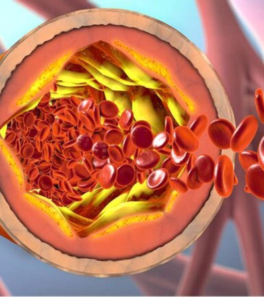 ¿Cómo funcionan el colesterol bueno y el colesterol malo?