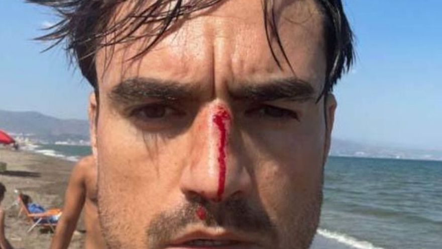 Un joven denuncia una nueva agresión homófoba en una playa canina de Málaga