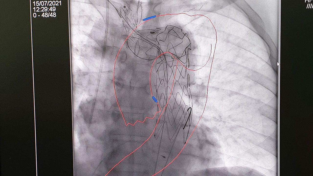 La imagen superpuesta del TAC y fusionada con la imagen radiológica en tiempo real