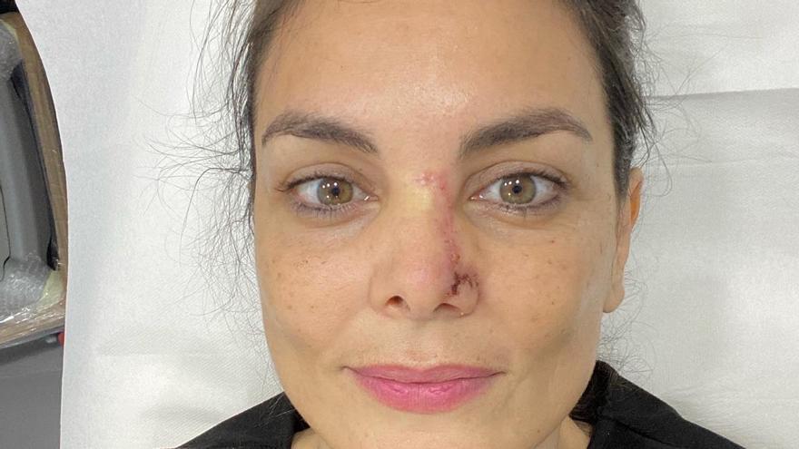 Mónica Carrillo supera un cáncer de piel localizado en la nariz