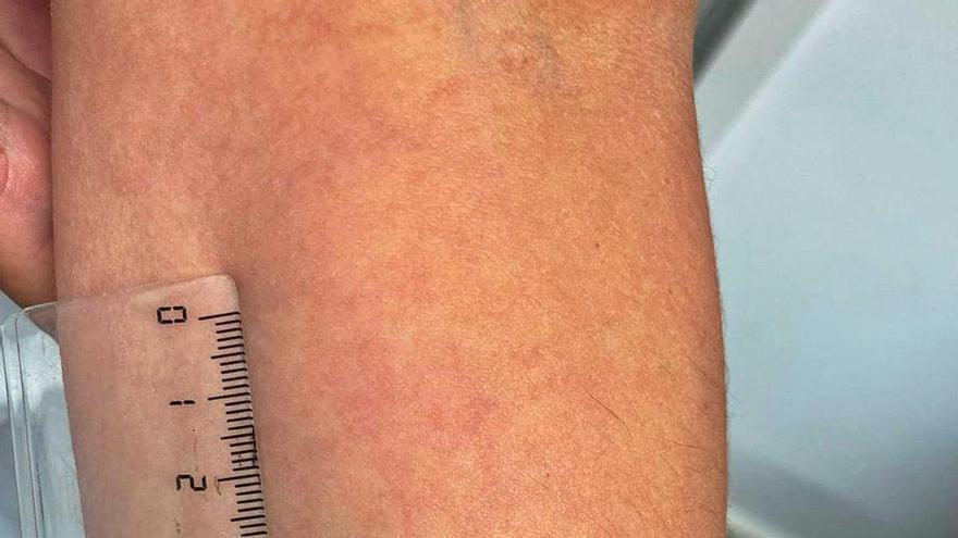 La inmunidad de la vacuna permanece intacta seis meses tras la inoculación