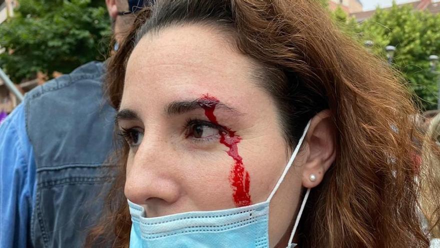 Echenique vuelve a cuestionar la agresión a la diputada de Vox De Meer en Vizcaya