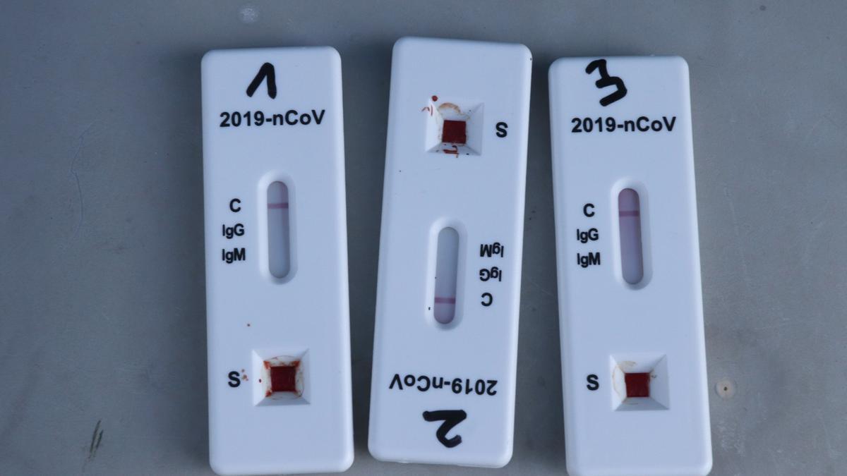 Pla detall d'uns tests d'antígens que han donat negatiu.