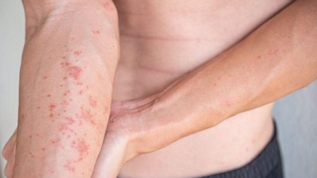 Dermatitis atòpica.