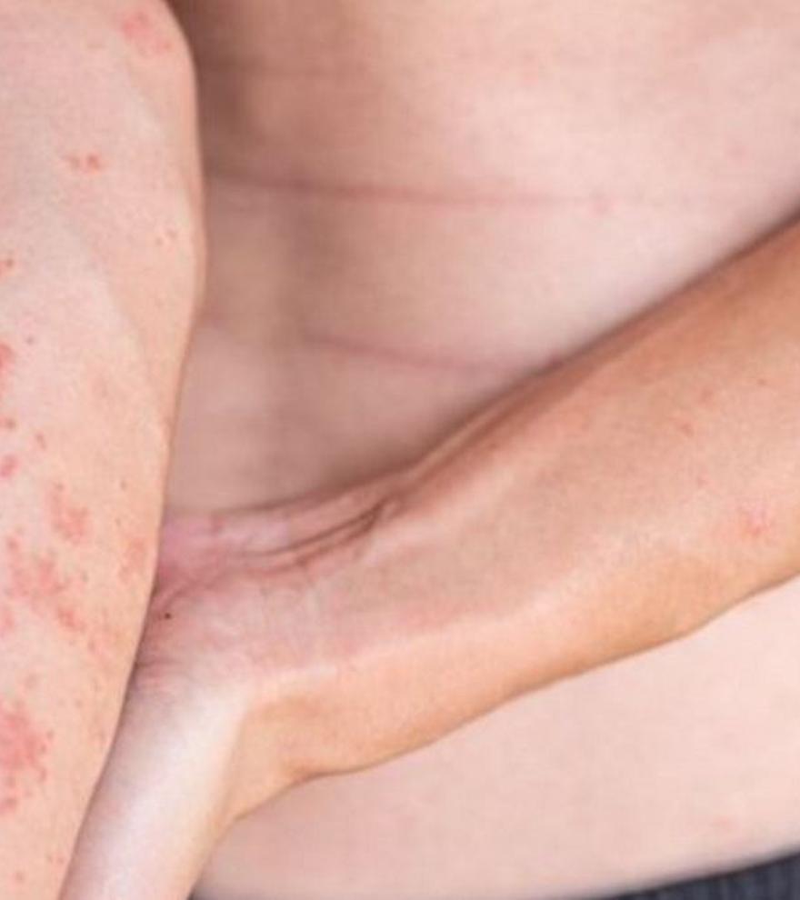 Quatre consells bàsics per a afrontar la dermatitis atòpica