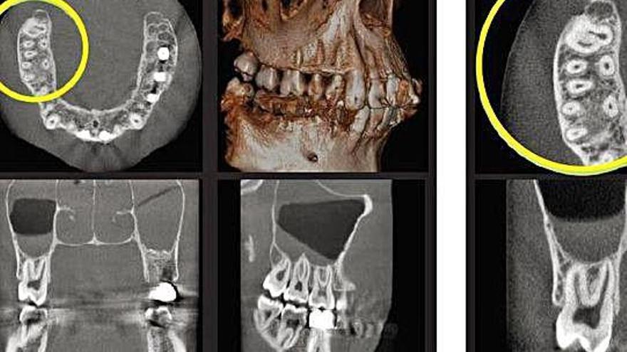 San Roque incorpora un escáner dental de última generación
