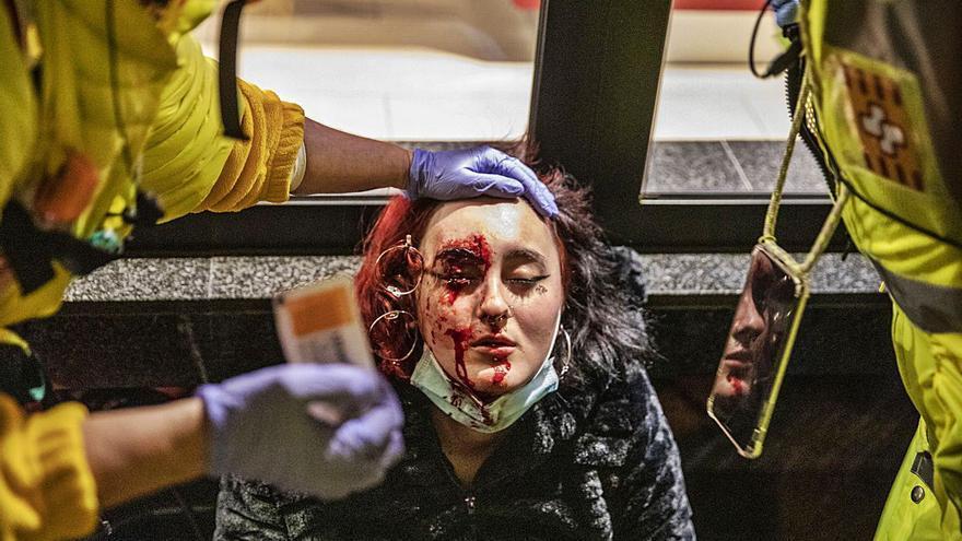 Imputats dos mossos per la pèrdua d'un ull arran d'un projectil de foam