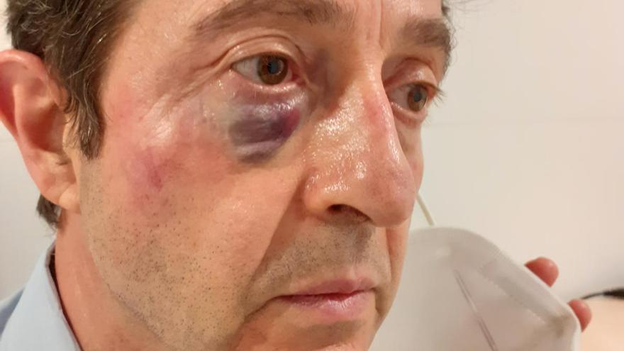 Un interventor de Renfe denuncia l'atac de tres joves sense bitllet de tren a Flaçà
