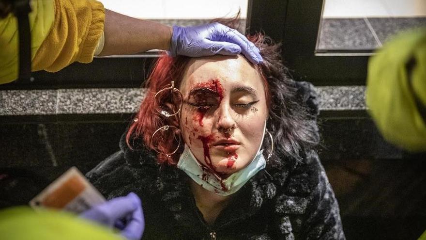 Pierde el ojo la mujer herida supuestamente por los Mossos en la protesta por Hasél
